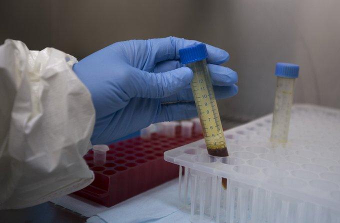 ICMR asks states to halt using Rapid Test Kits